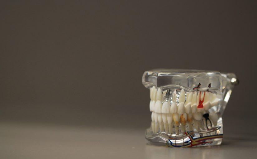Zła dieta odżywiania się to większe niedobory w jamie ustnej oraz również ich brak